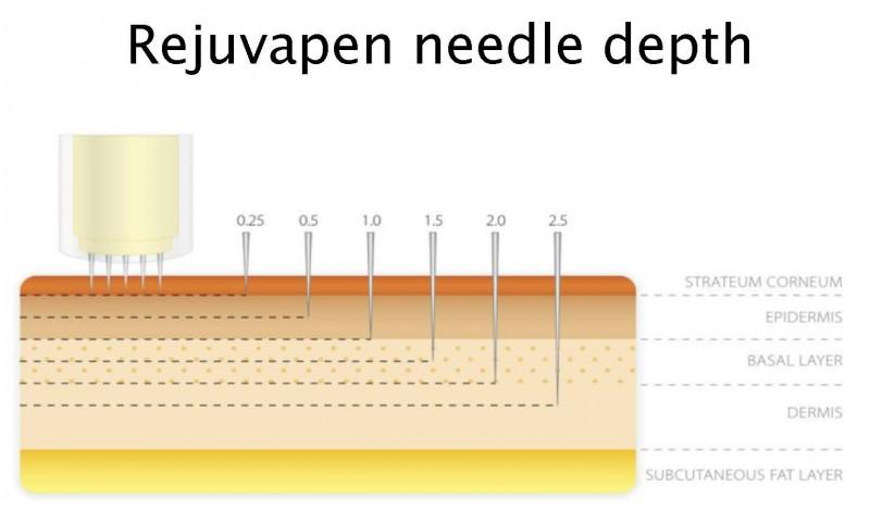 Rejuvapen-needle depth
