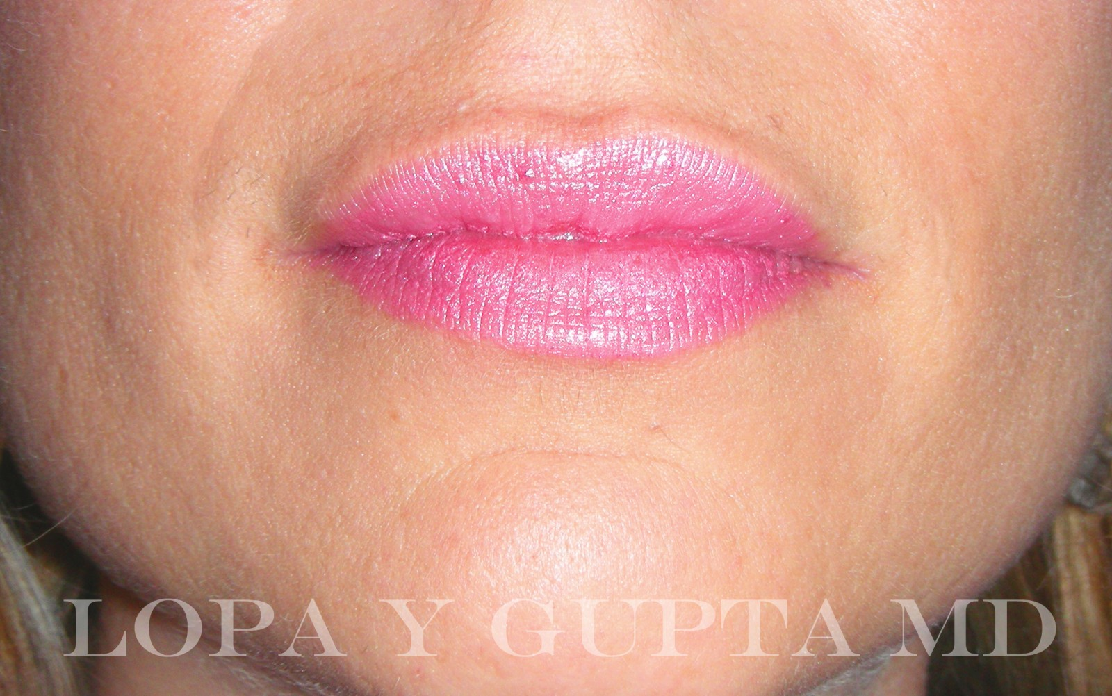 Lumps In Lips Months After Filler | Lipstutorial org