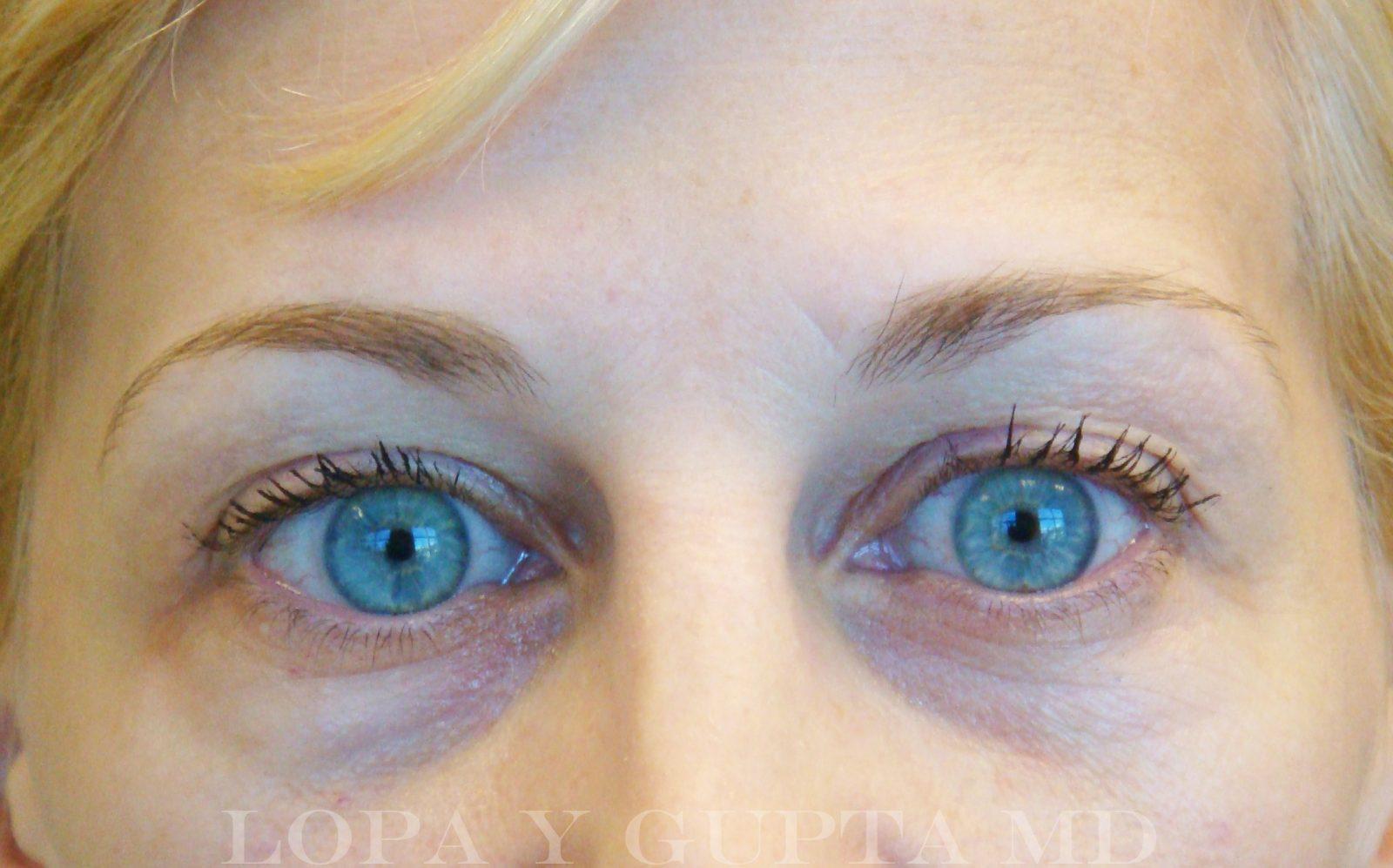 Tyndall Effect Under Eyes | www.pixshark.com - Images ...
