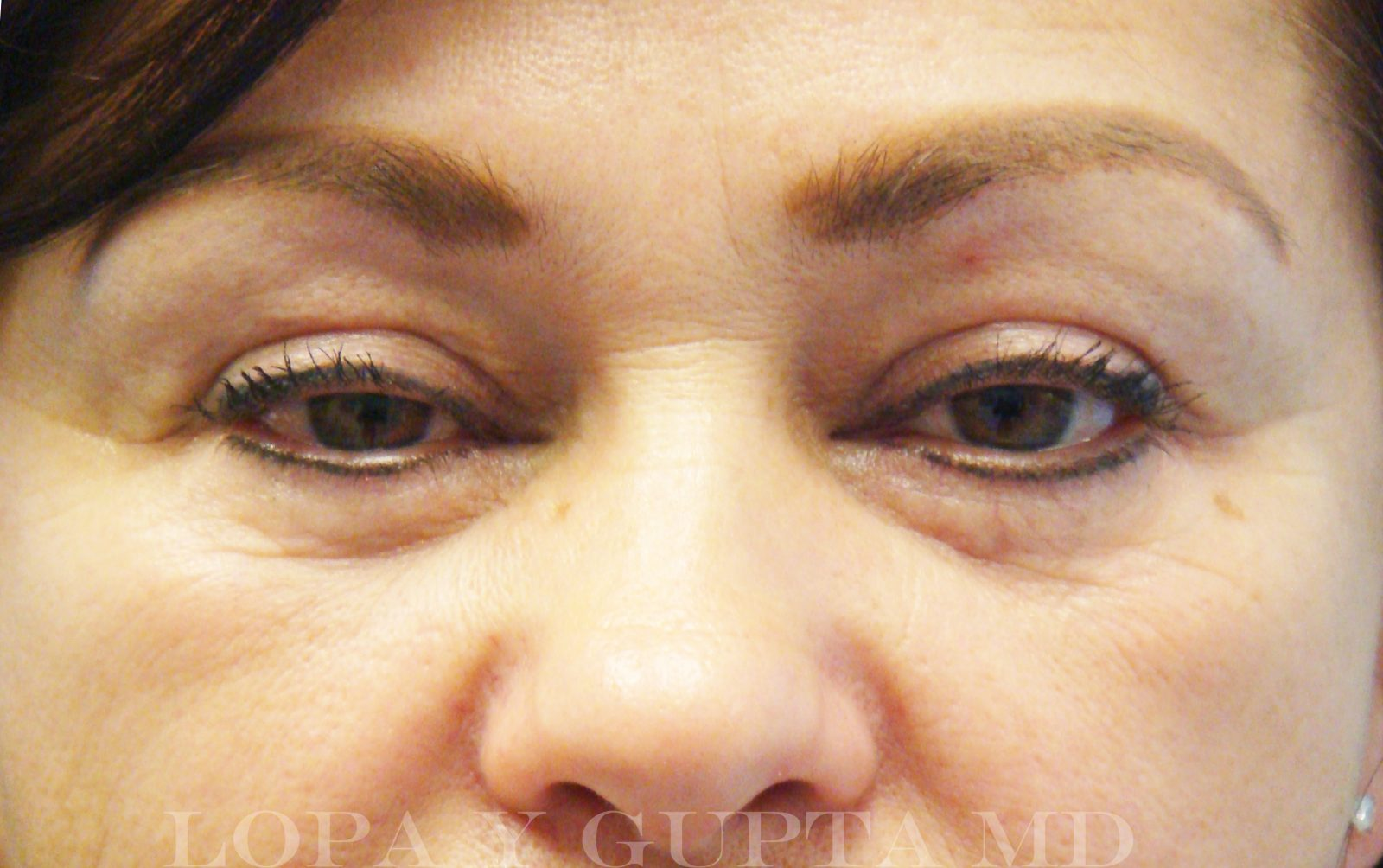 TREATMENT FOR DARK CIRCLES AND UNDER EYE HOLLOWING | Lopa